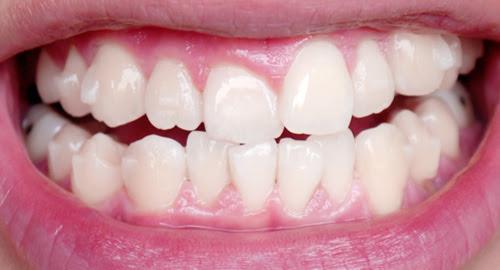typicalben teeth 1st set of invisalign
