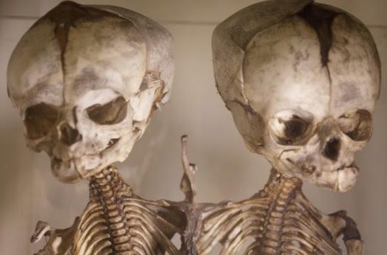 Museum  kedokteran tak hanya didatangi para mahasiswa atau dosen saja 5 Museum Kedokteran Paling Aneh di Dunia