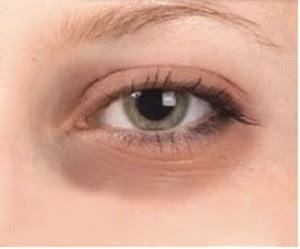 7 Ways to Naturally Treat Eye Disease Panda