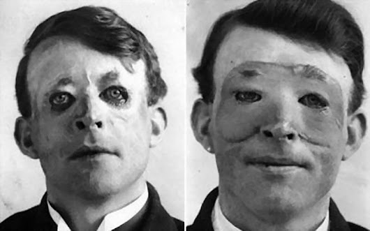Disfigured WWI Vets Were the First Plastic Surgery Patients - Tonic