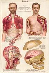anatomie fractures 1