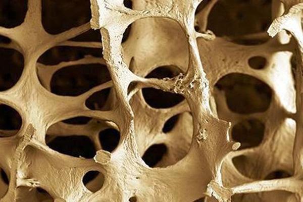 origen osteoporosis