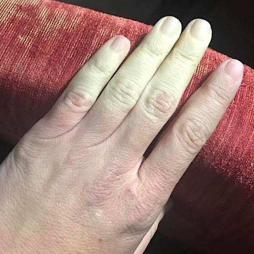 Reversing Raynaud Syndrome