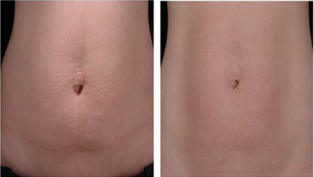 Safe and secure laser treatment. Customized treatment for various stretch marks before and after skin wash in Westbury.