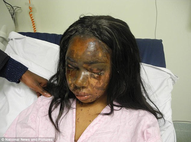 The horrific injuries sustained by acid attack victim Naomi Oni have been revealed today as Mary Konye was found guilty of throwing corrosive acid in her friend's face