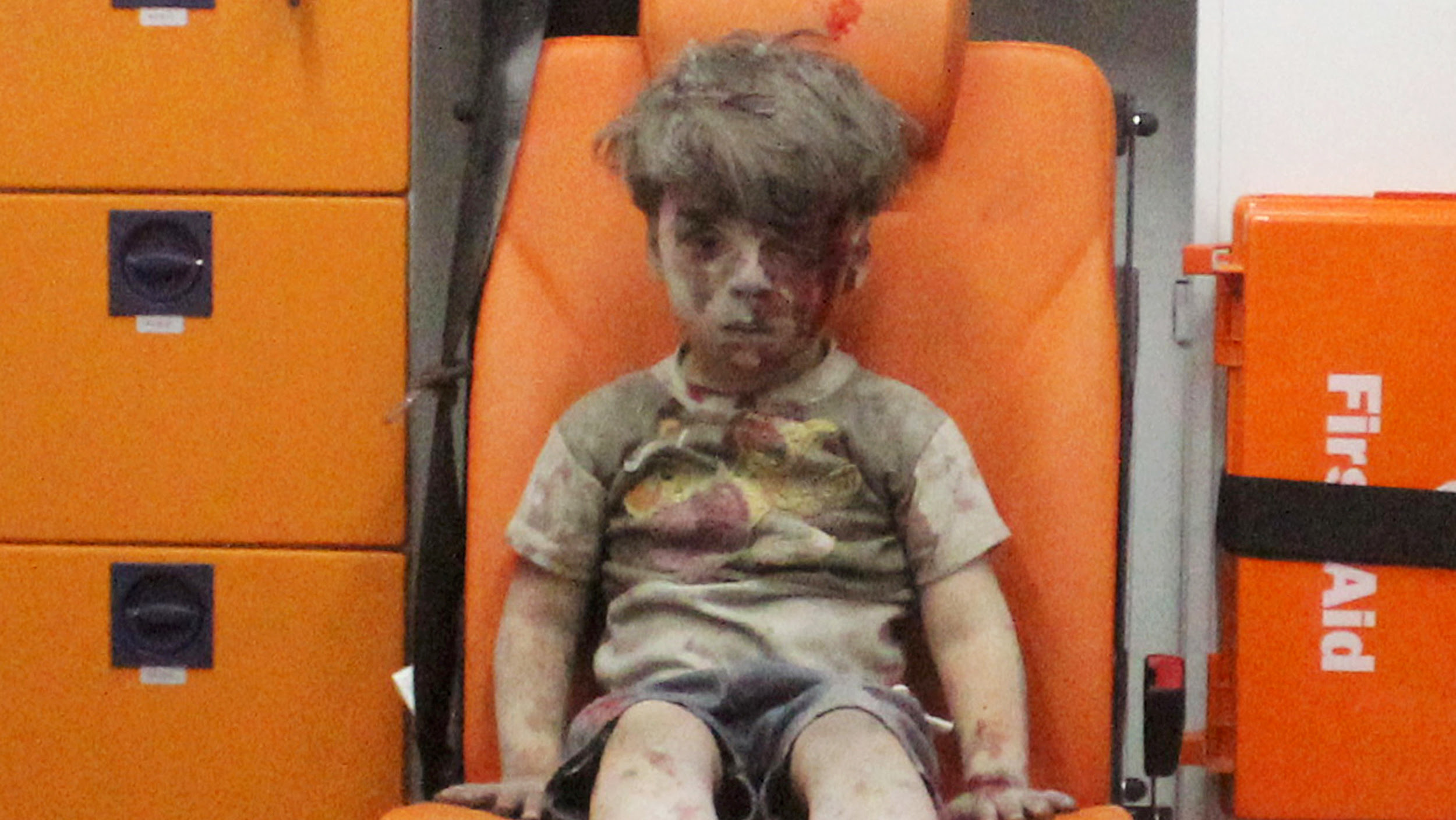 Image result for Bloodied syrian boy