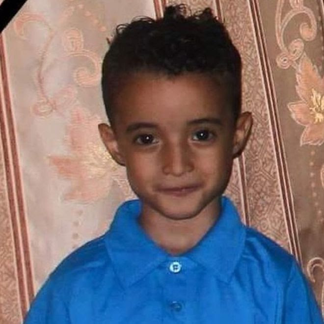 6-year-old Fareed Shawky was seriously injured after a missile hit his house in Yemen's third city of Taiz.