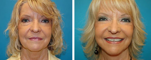 Facelift Grand Rapids MI | Facelift Surgery