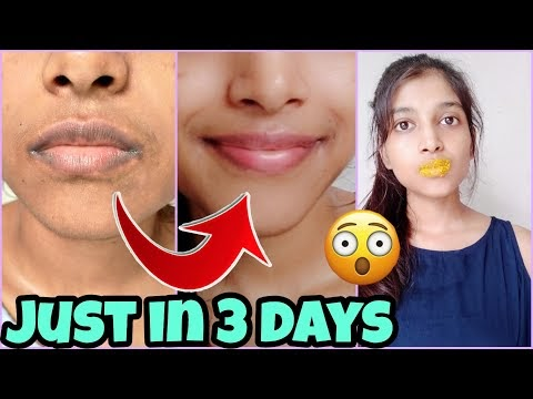 How I get rid of Pigmented lips 👄  REAL LIP CARE ROUTINE changes my lips
