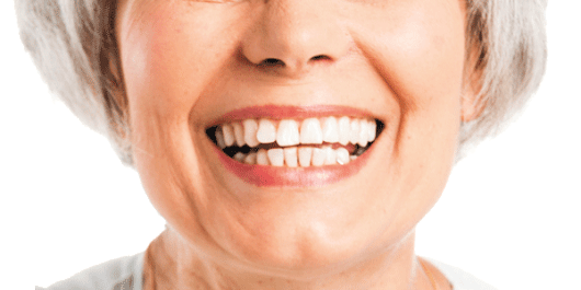 Two options for replacing lost teeth - Harvard Health