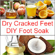 Dry Cracked Feet DIY Foot Soak