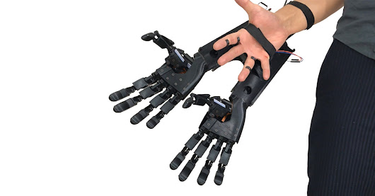 youbionic's 3D printed double hand builds first augmented human