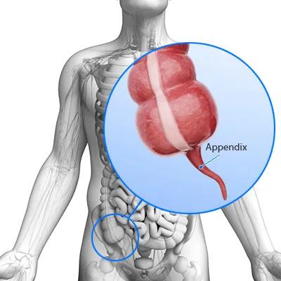 Appendicitis Symptoms, Causes, Treatment - What is ...
