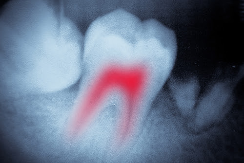 Tooth Pain? You May Need a Root Canal. - Dr. Sheri Boynton-Love