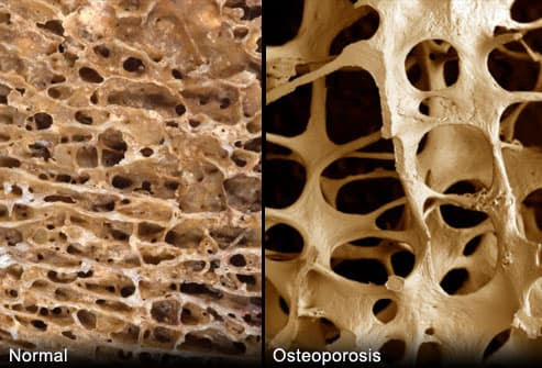 Normal and Osteoporosis Bones