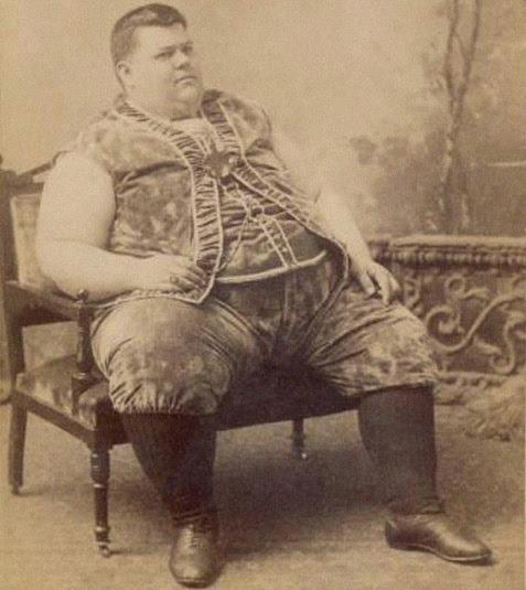Where have all the circus fat men gone?