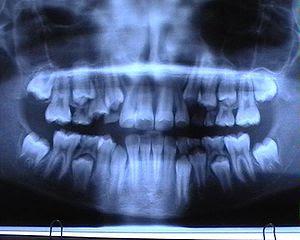Orthopantomogram: Mixed dentition