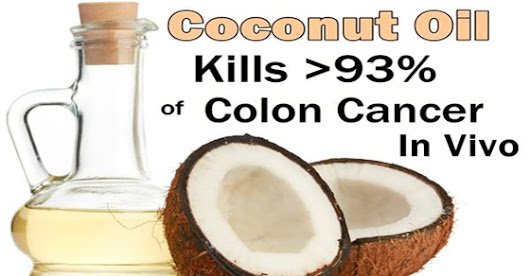 Coconut Oil Kills 93% of Colon Cancer Cells In Vivo