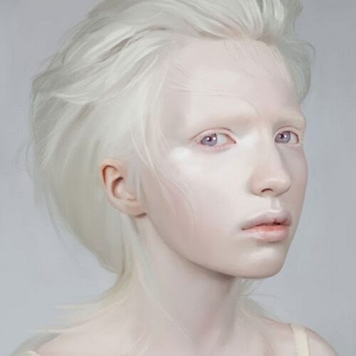 A beleza única dos albinos