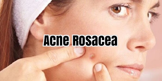 Rosacea Treatment Guide