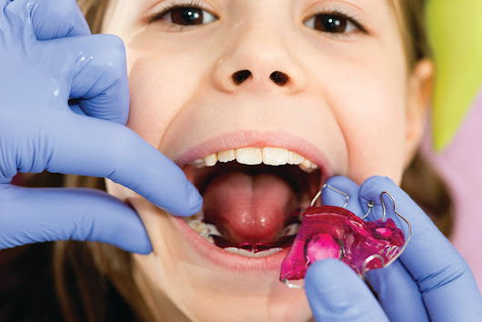 5 Reasons to start your child's orthodontics early - Brantford North Dental's Blog