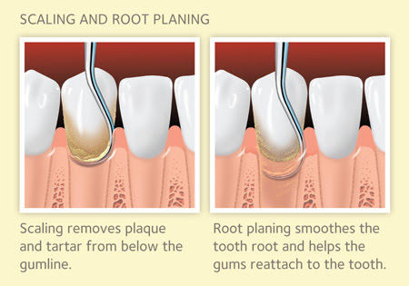 Scaling and Root Planing for Gum Disease - American Dental Association