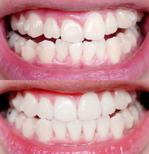 typicalben  invisalign teeth  updates