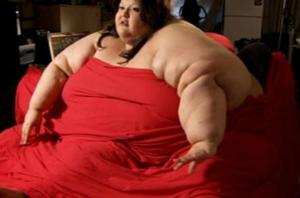 body fat percentage morbid obesity