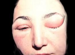 76 Gambar Alergi Air