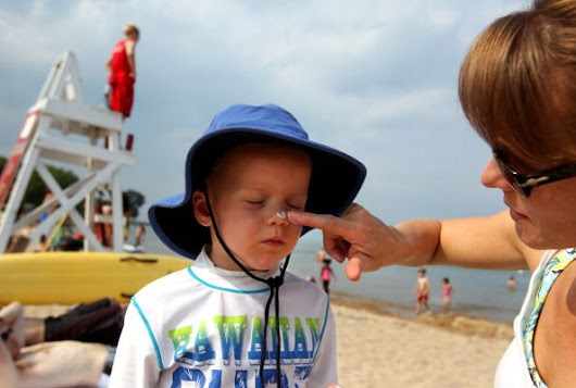 Skin cancer is on the rise, focus on prevention | Jeffrey Gershenwald, M.D