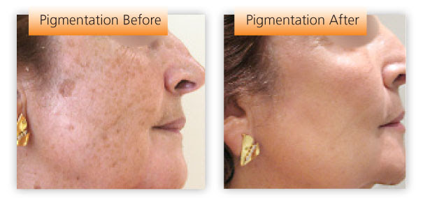 How You Can Quickly And Easily Reverse Any Discoloration ...