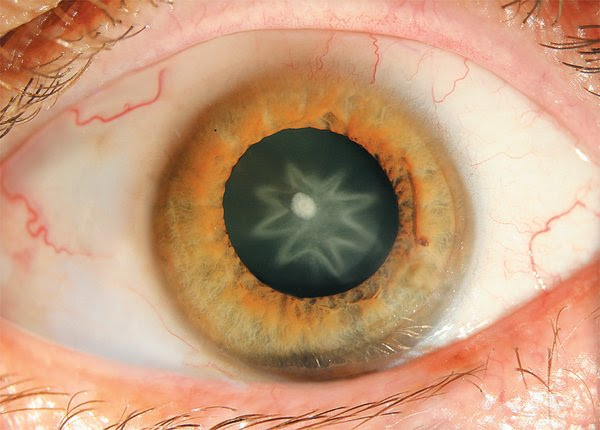 Punch Leaves Man With Star-Shaped Cataract