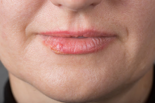 Cold Sores: Painful Fever Blisters
