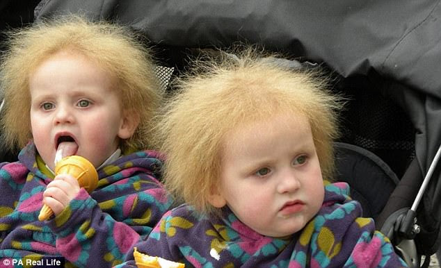 The twins' mother first noticed their coarse hair when it started to grow when they were babies