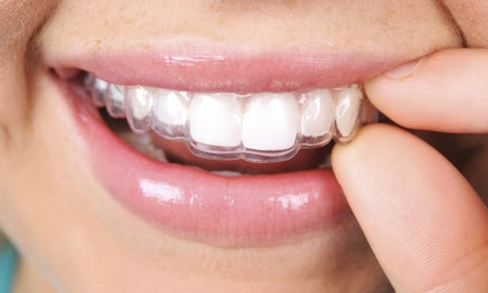 $199 for $2,000 Off a Complete Invisalign Treatment or Traditional Braces at Galleria Dental Center