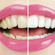 Do Teeth-Whitening Kits You Use at Home Really Work?