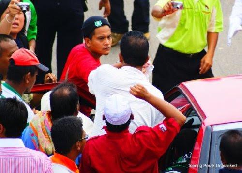 Kerana keceraan yang agak serius di kepala dan mulut dia telah di hantar ke hospital Kuala Krai untuk mendapatkan rawatan lanjut