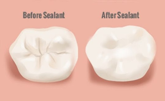 The Difference Between Dental Fillings, PRR, and Sealants | Brusky