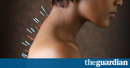 Pains and needles: brain scans point to hidden effects of acupuncture | Working in development | The Guardian