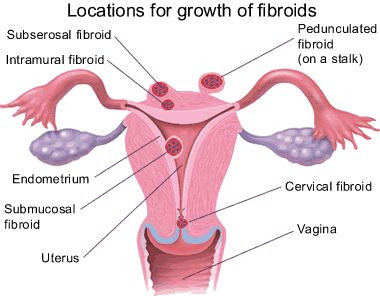 Does Fibroids Miracle Work?