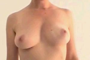 breastup (2)