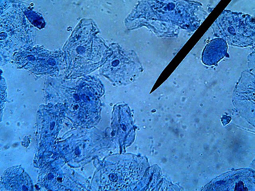 observe cheek cells under the microscope