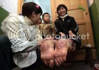 pieds inverses Chine