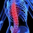 How to Care For Spinal Cord Injury After an Accident