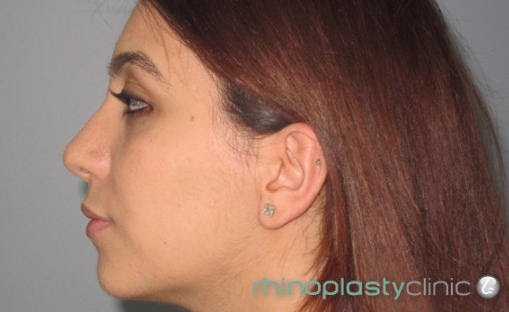 Jennifer's Before and After Pictures - Rhinoplasty Clinic Sydney