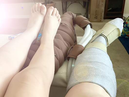 Loving Someone With Lymphedema - Pura Vida Sometimes