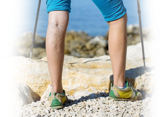 Treatment Options for Varicose Veins Sudbury - Sudbury Vein Clinic
