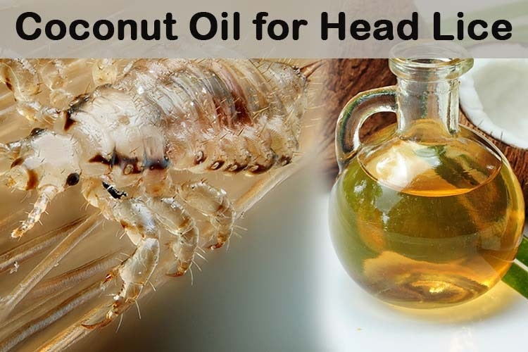 coconut oil and lice how to get rid of lice fast in a natural way coconut oil and women healthy. Black Bedroom Furniture Sets. Home Design Ideas