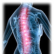 Osteoarthritis  - Chiropractic Health and Acupuncture