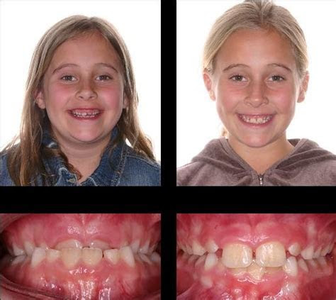 8 best Before and After Journey to your Spectacular Smile